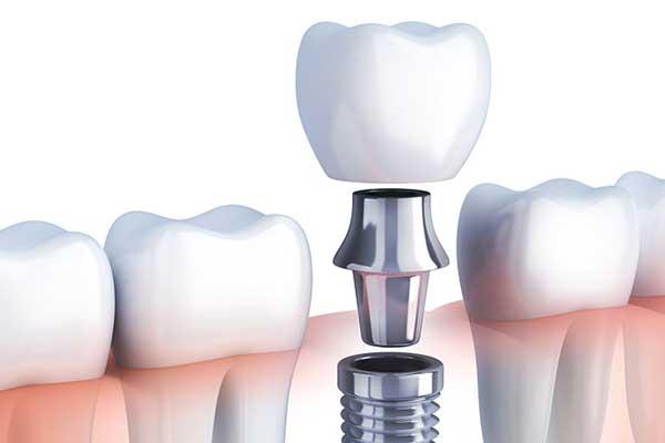 clinicas implantes dentales zaragoza