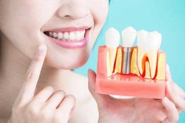 mejores implantes dentales zaragoza