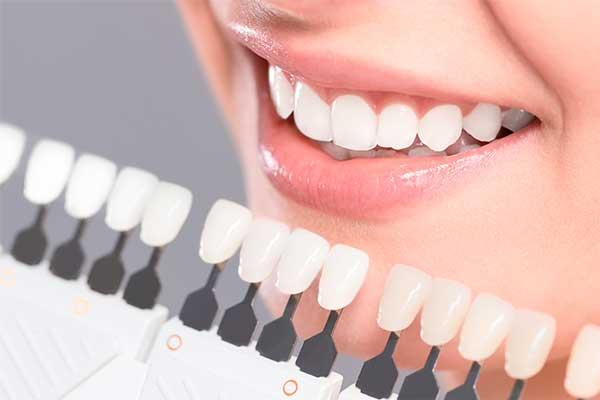 blanqueamiento dental precios zaragoza