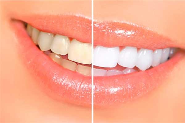 clinica blanqueamiento dental zaragoza