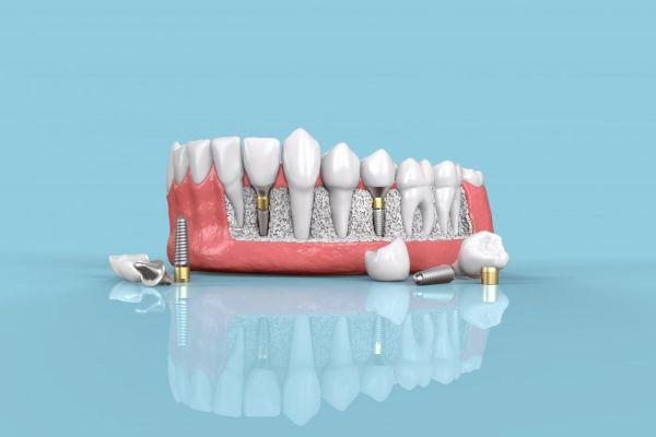 Impantes dentales precios Zaragoza
