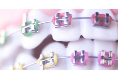 precios ortodoncia zaragoza