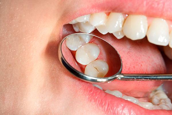 diferencias endodoncia y empaste