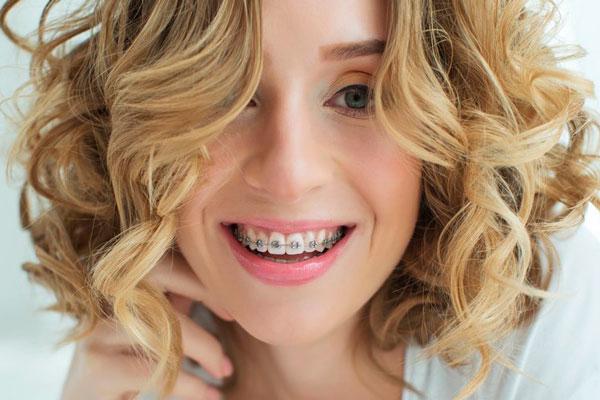 como funciona la ortodoncia con brackets